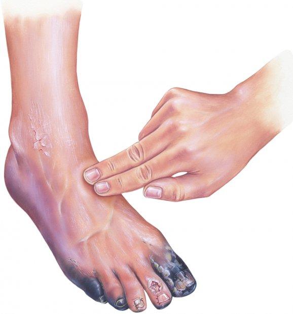 Диабет 2 типа удаление пальца