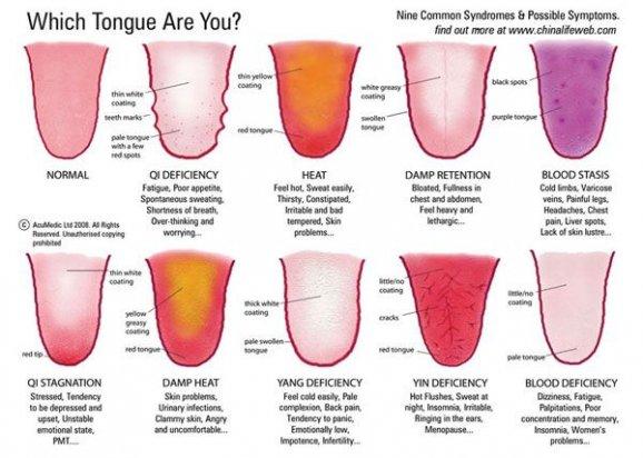 Barva I Tvar Jazyka O Vas Mnoho Napovi Styl Instory Cz
